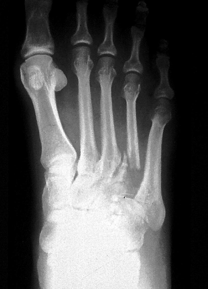 Metastases To Bone