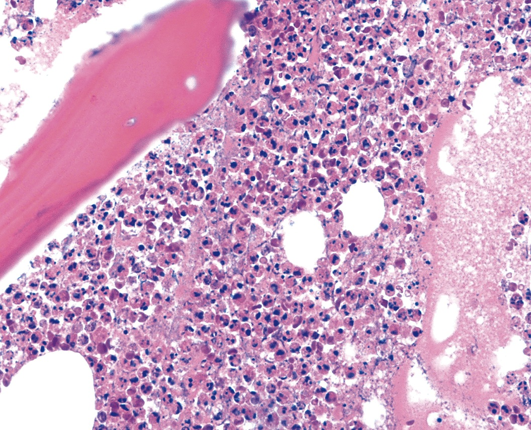 chronic osteomyelitis An invasive squamous cell carcinoma of mandible presenting as chronic  osteomyelitis: a case report neha and sarita mahajan oral and.