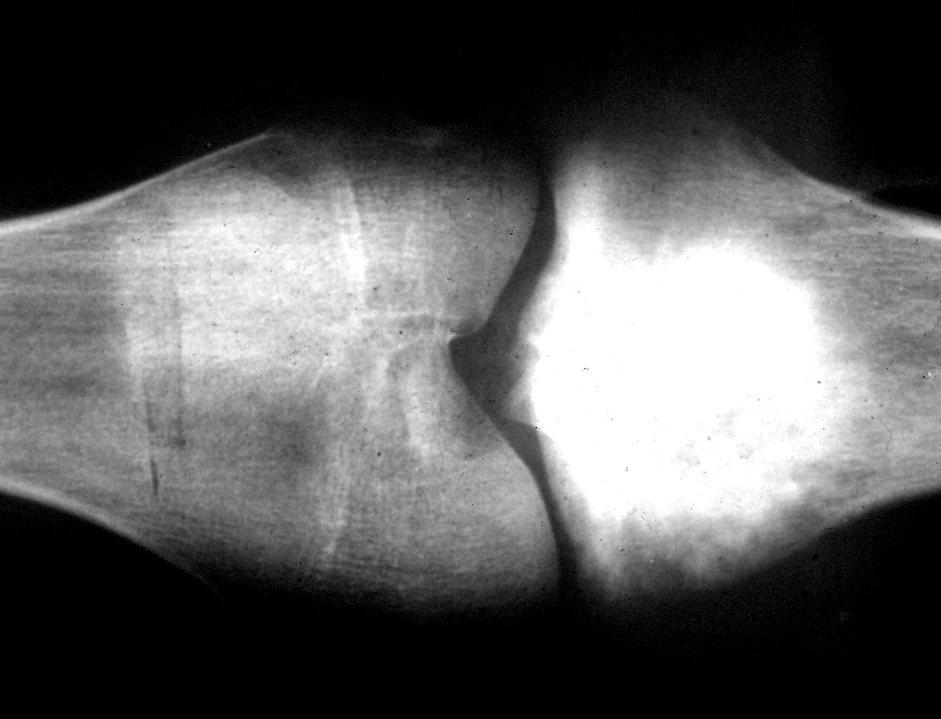 Blastic type  xray - contributed by Dr  Mark R  WickOsteosarcoma X Ray
