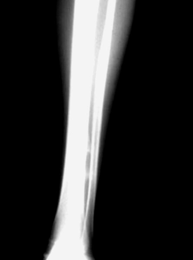 Osteosarcoma Periosteal Type Xray