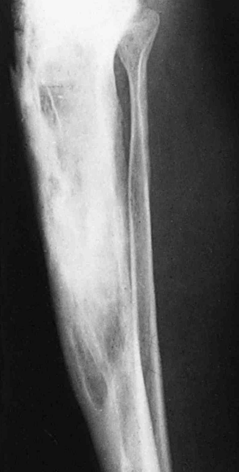 pagets disease Paget's disease is a chronic condition of bone characterized by disorder of the normal bone remodeling process normal bone has a balance of forces that act to lay down new bone and take up old bone.