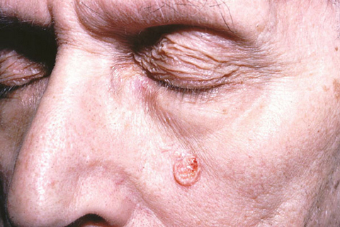 Prominent Sebaceous Glands Under Eye